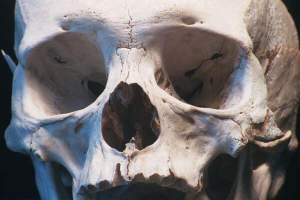 human skull closeup photo