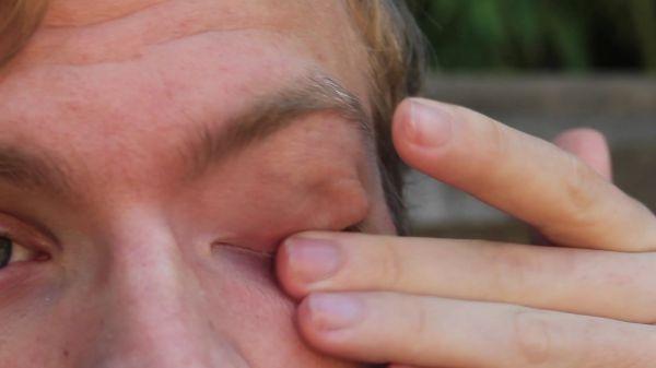 Allergy  eyes  health video