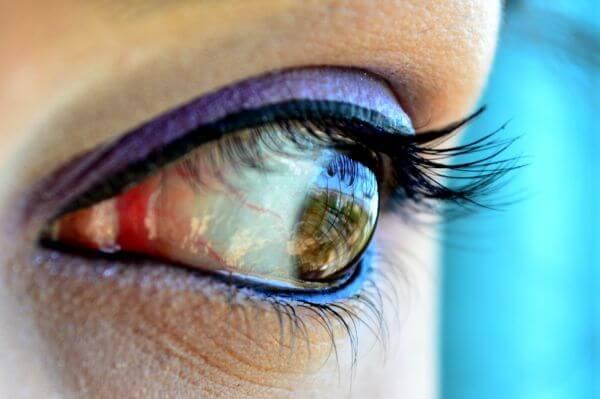 Eye Red Makeup photo